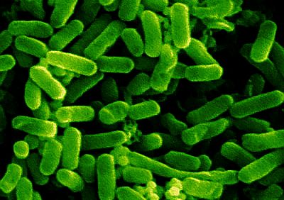 eubacteria e coli Escherichia coli (/ ˌ ɛ ʃ ɪ ˈ r ɪ k i ə ˈ k oʊ l aɪ / also known as e coli) is a gram-negative, facultative aerobic, rod-shaped, coliform bacterium of the genus escherichia that is commonly found in the lower intestine of warm-blooded organisms (endotherms.